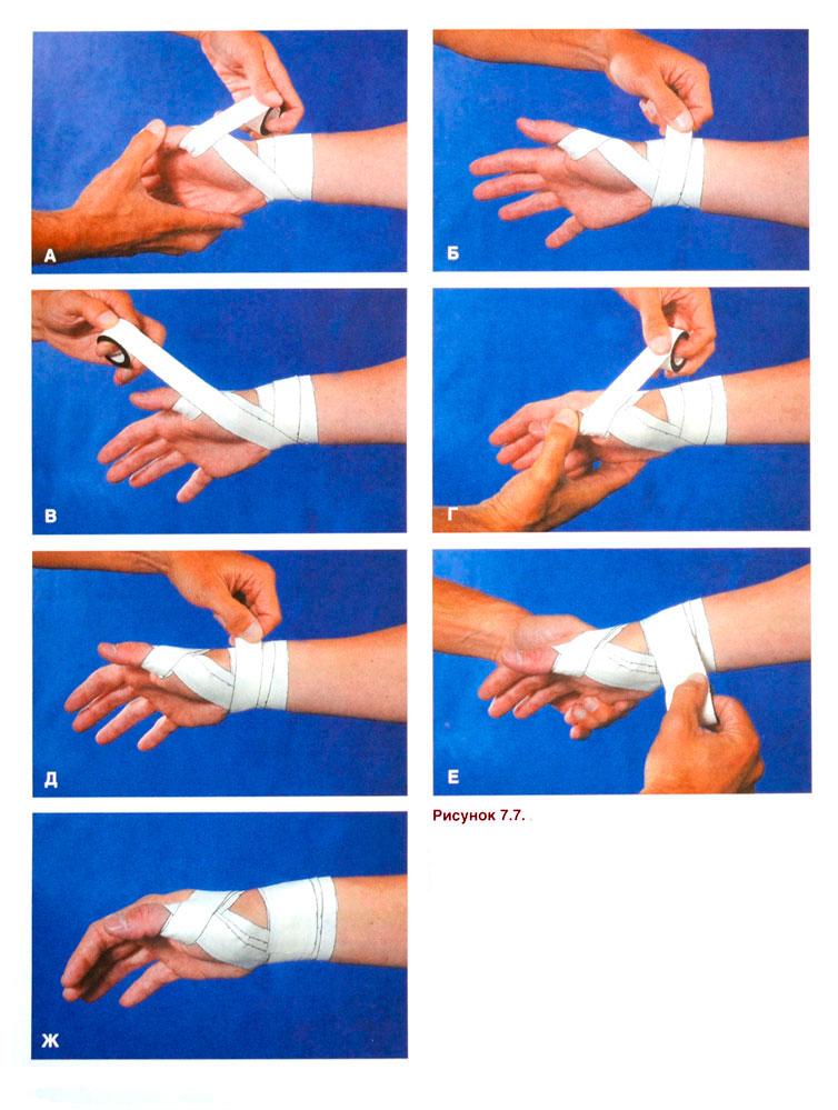 Как сделать руки в бинтах 2