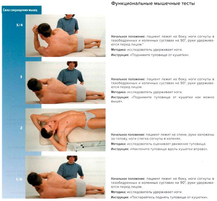 Функциональные мышечные тесты