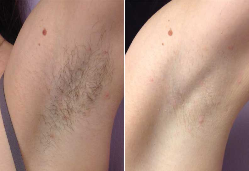 Файл:Laser-Hair-Removal-After.jpg