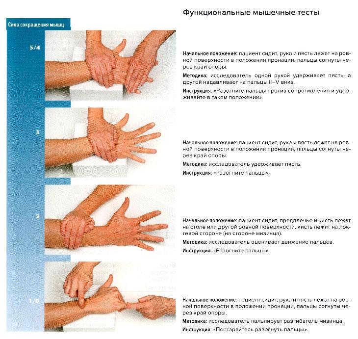 замена сустава кисти руки