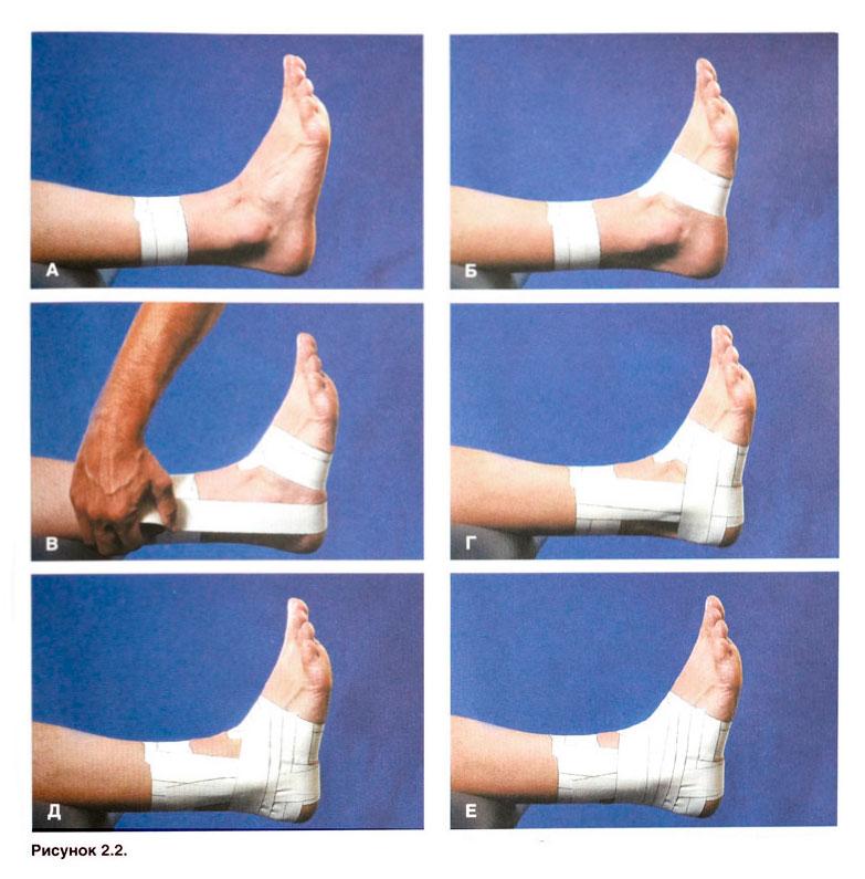 Растяжение голеностопного сустава повязки картинка голеностопного сустава