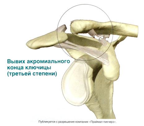 Вывих суставов википедия санаторий в грузии суставы цхалтубо