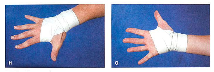 Боль В Суставе Большого Пальца Руки