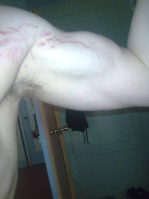 увеличении груди у капрановой аллы сергеевны форум