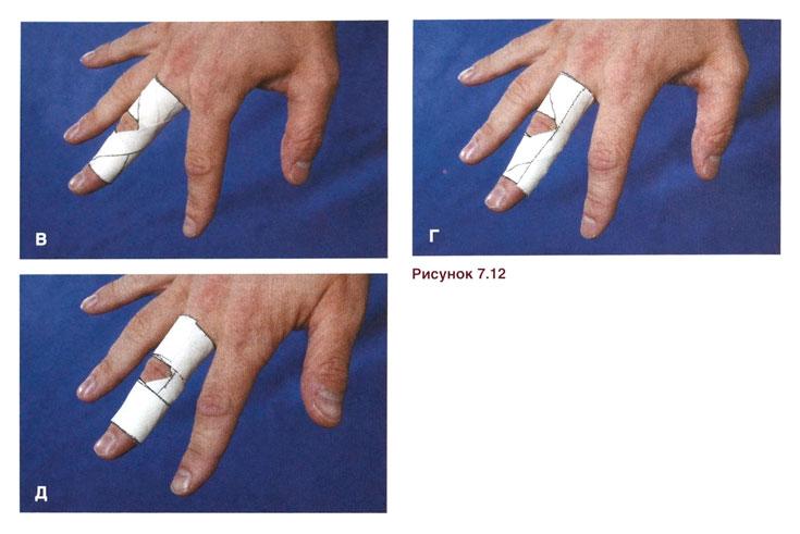 Вросшие ногти на ногах лечения дома