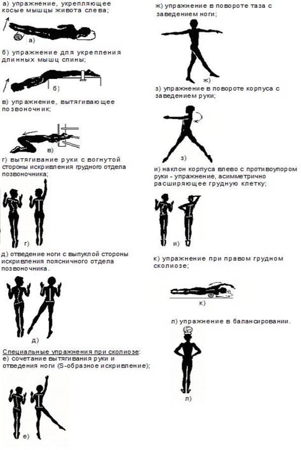 Лечение сколиоза — SportWiki энциклопедия