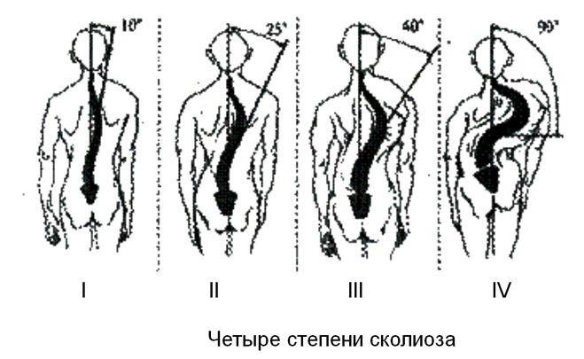 13 недель беременности боли в спине и