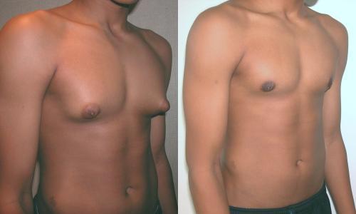 Стероиды без гинекомастии примоболан винстрол