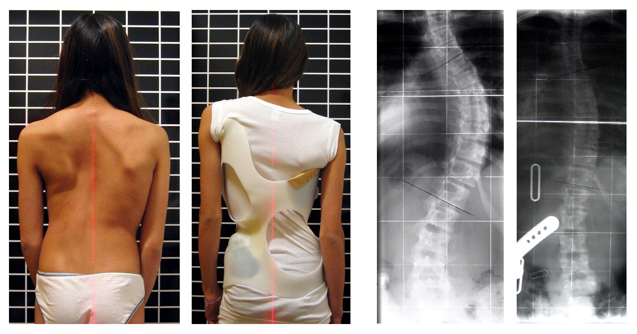 Файл:Scoliosis patient in cheneau brace correcting from 56 to 27 deg.png