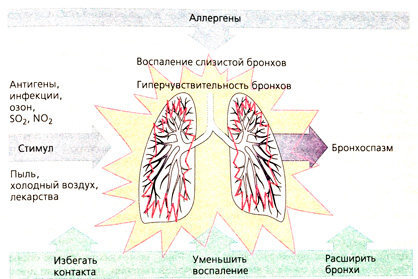 бронхиальная астма на производстве