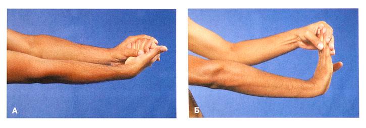 Повреждение лучезапястного сустава от чего болят суставы на кисти рук
