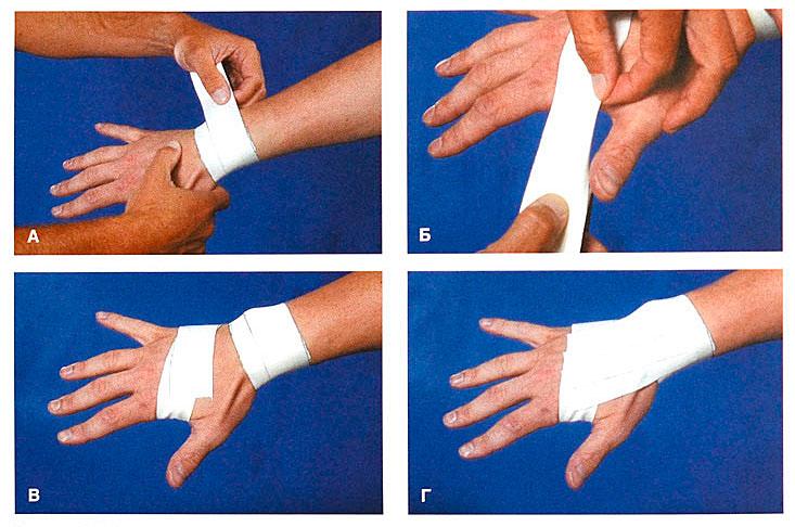 При расстяжки суставов первая медицинская помощь при растяжение связок голеностопного сустава