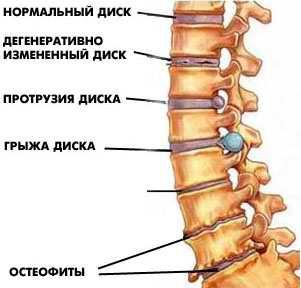Постоянная боль в спине в области поясницы причины