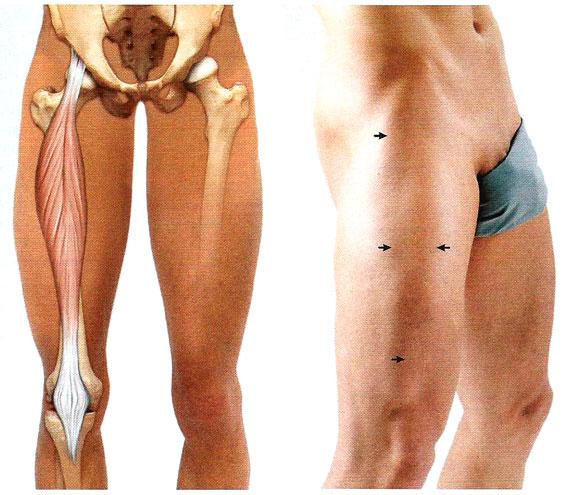 Четырехглавая мышца выполняет функцию связок коленного сустава лечение деформирующего артроза коленных суставов