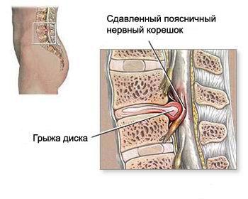 Упражнения флекс при остеохондрозе