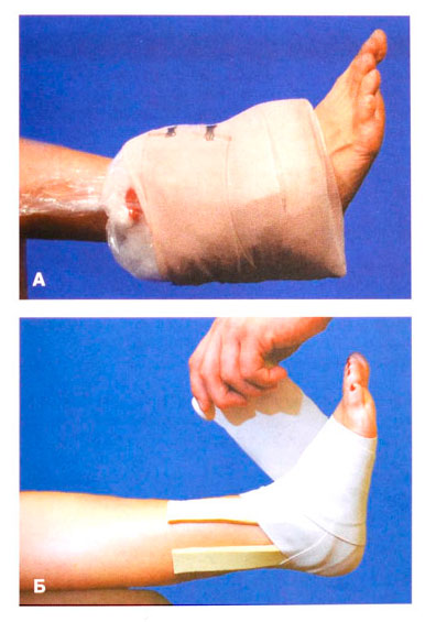 упражнения для плечевых суставов при болях