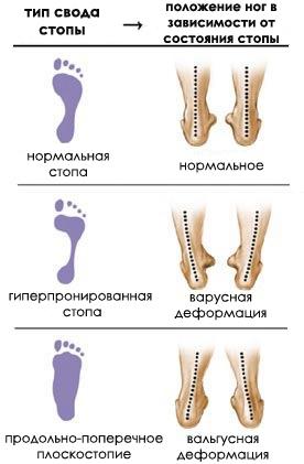 Плоскостопие — SportWiki энциклопедия