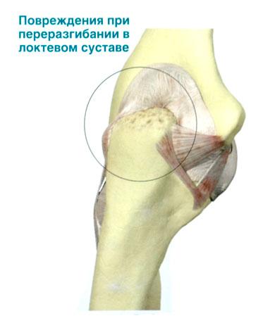 Дети с выраженными переразгибаниями в локтевых суставах как лечить артрит на ногах на суставах