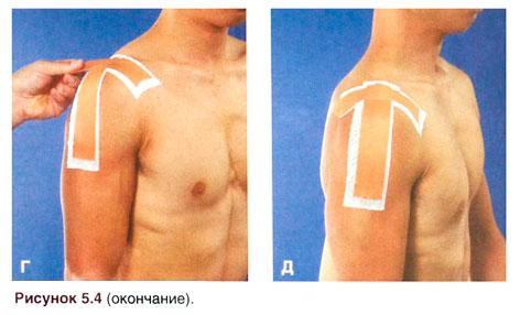 Розрыв связок ключично-акромиального сустава цена протезов тазобедренного сустава