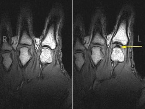 Объяснение хруста в суставах прощелкивает тазобедренный сустав