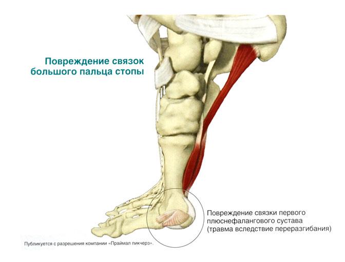 Разрыв первого плюснефалангового сустава лечение плечевого сустава в москве цены