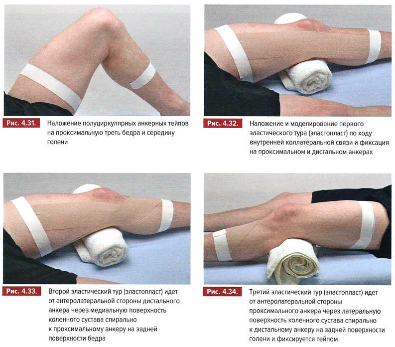 противопоказания при артрите коленных суставов