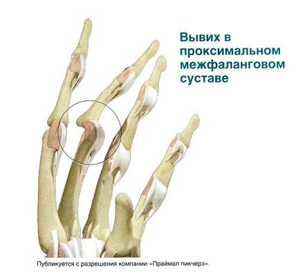 Выбил сустав на пальце синдесмоз голеностопного сустава лечение