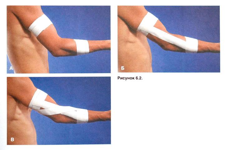 Сухожилия локтевого сустава разрыв суставная гимнастика засса