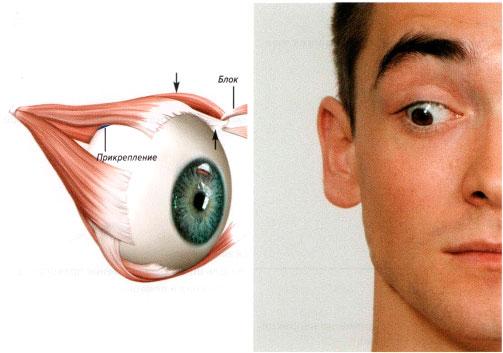 Болит лобная часть головы и давит на глаза как лечить