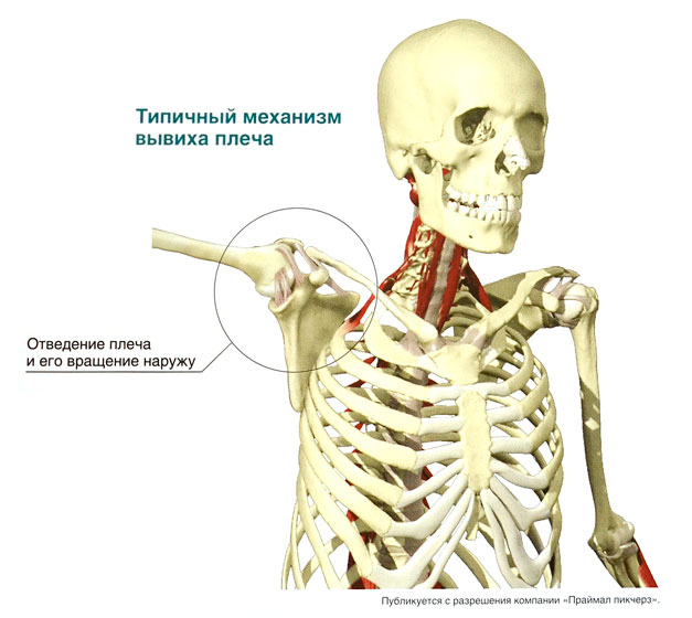 Нестабильность плечевого сустава классификация код мкб10 бурсит плечевого сустава