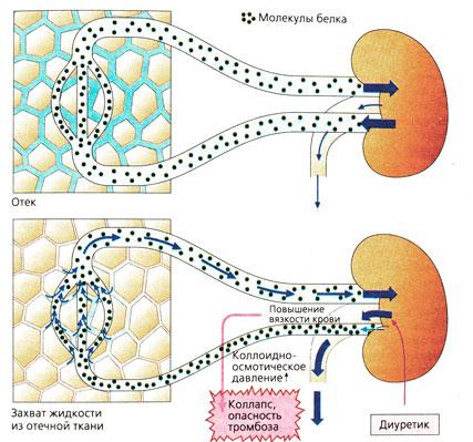 tiazidnie-diuretiki-seksualnie-rasstroystva