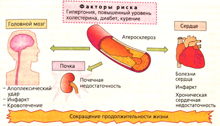 Почечная гипертония препараты для лечение