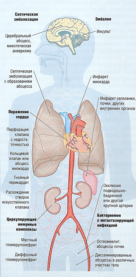паразиты в организме лечение народными методами