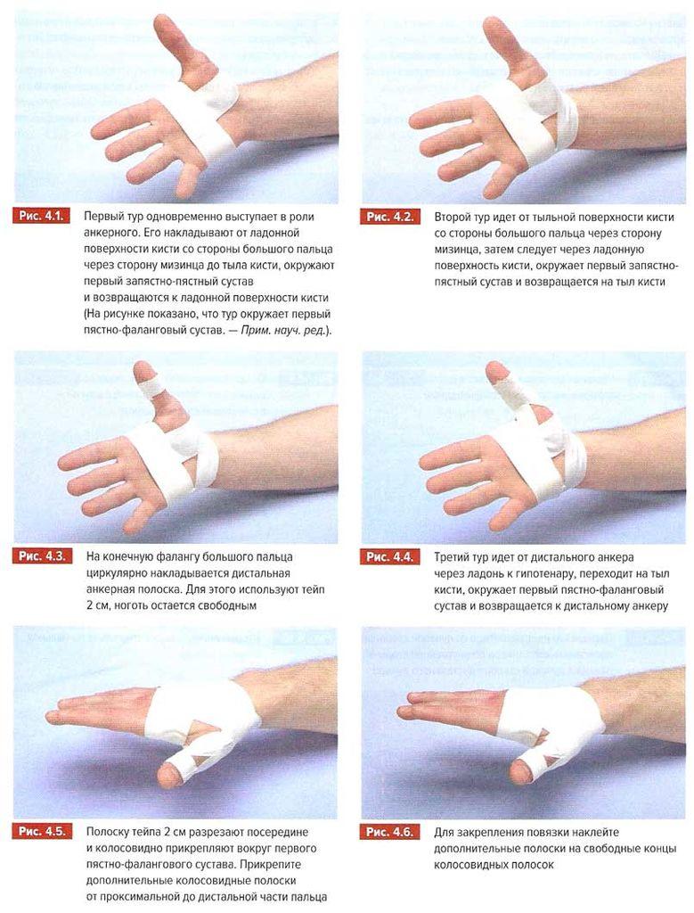 Фиксация сустава указательного пальца руки био анальгетик крем для суставов