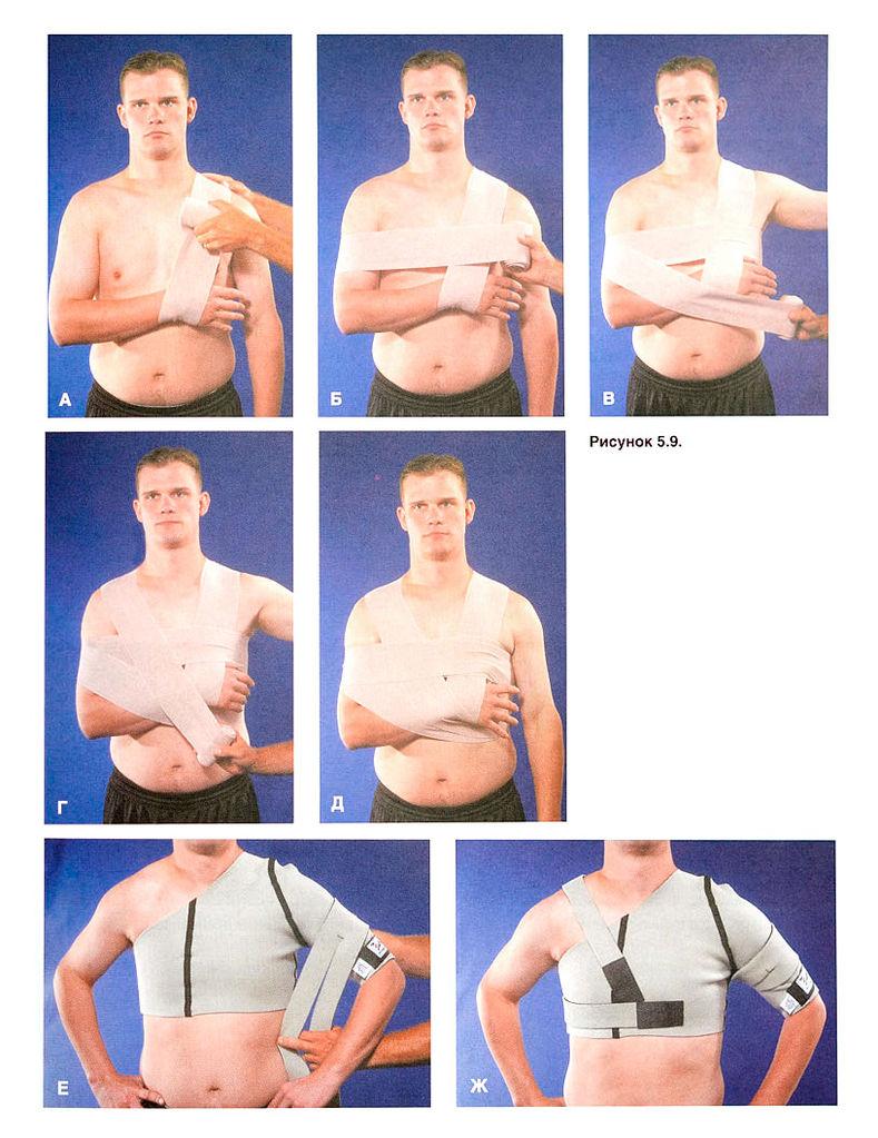 Лфк при нестабильности плечевого сустава развитие гибкости пасивных и активных тазобедренных суставов