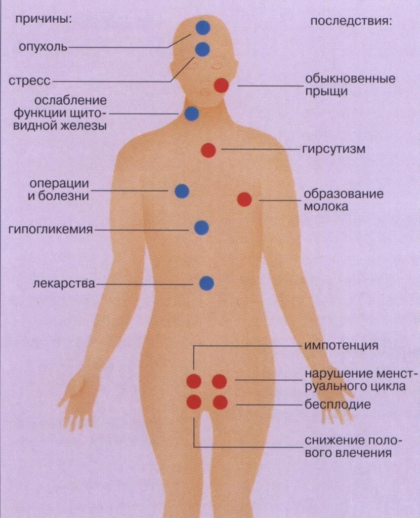 Повышенный уровень пролактина: причины и последствия